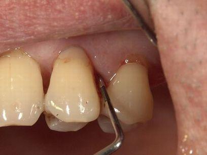 歯周外科治療前