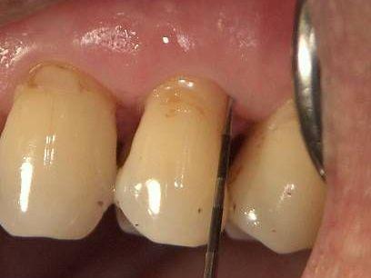 歯周外科治療後