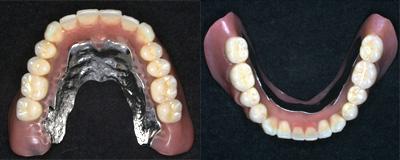 総入れ歯を固定する方法としてインプラントを使用する