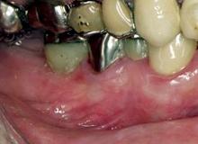 歯周病治療手術前