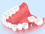 実際の治療費の例(臼歯1本欠損の場合)