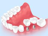 実際の治療費の例(臼歯2本欠損の場合)