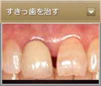すきっ歯を治す