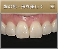 歯の色・形を美しく