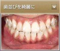 歯並びを綺麗に